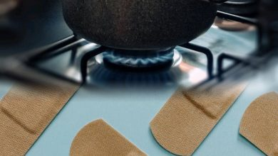 Photo of What to Put on a Burn -I Survived the Kitchen and So Can You
